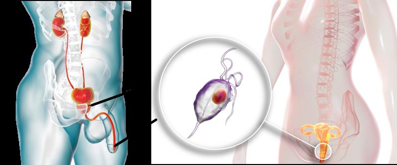 남자 여자 모두 트리코모나스 감염 발생 가능